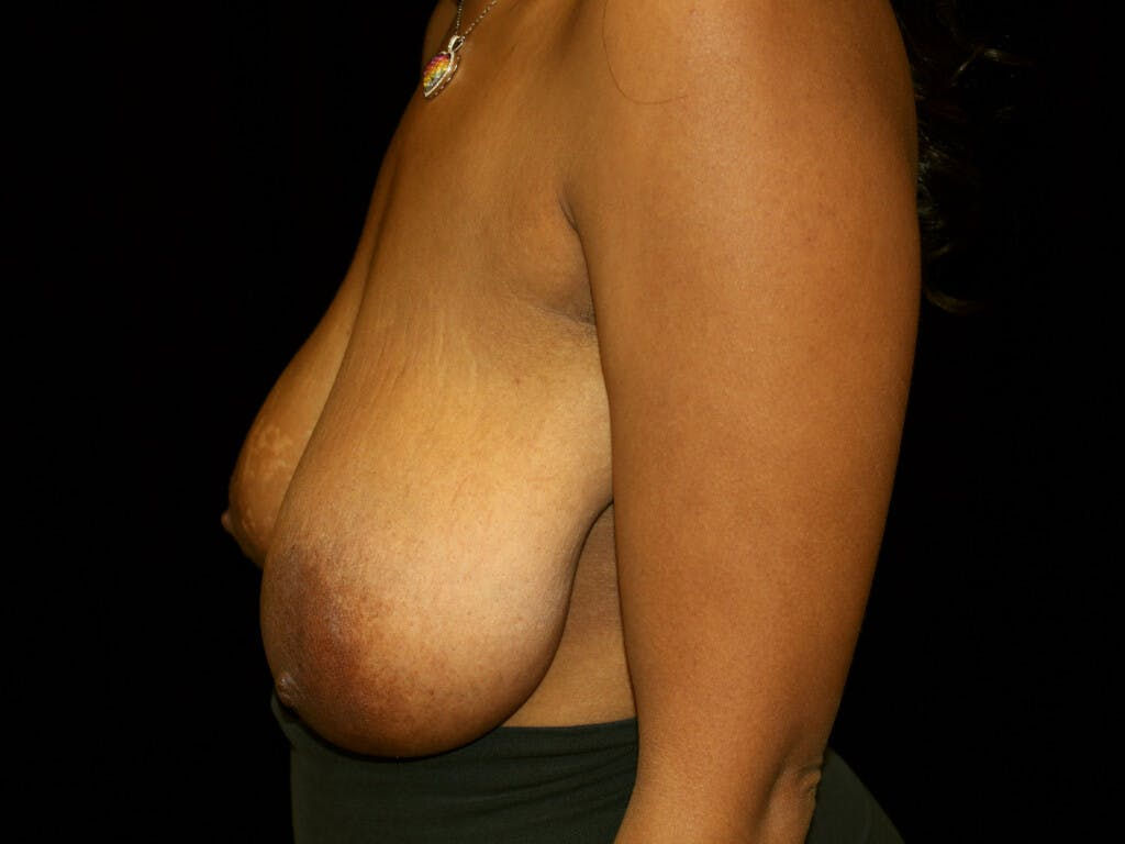 Breast Reduction T Incision Gallery - Patient 39235636 - Image 7