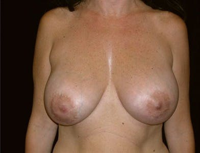 Revision Breast Surgery Gallery - Patient 39235634 - Image 2