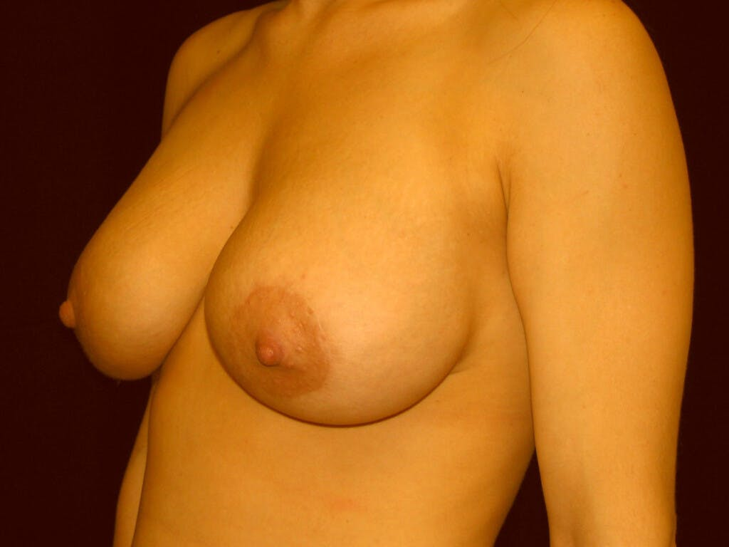 Peri-areolar Breast Lift Gallery - Patient 39235638 - Image 8