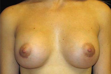 Breast Augmentation Gallery - Patient 39235635 - Image 2