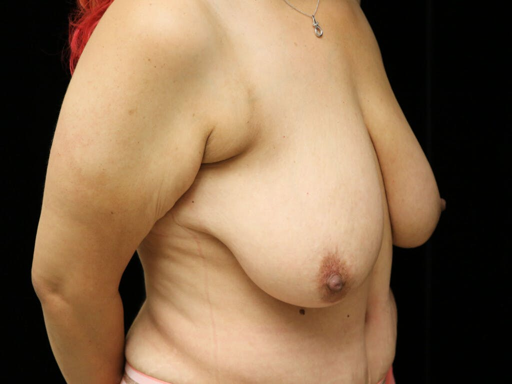 Vertical and Inverted T Breast Lift Gallery - Patient 39244064 - Image 3