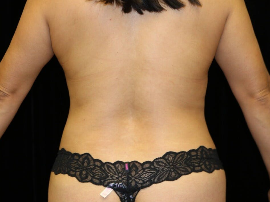 Tummy Tuck Gallery - Patient 39235637 - Image 10