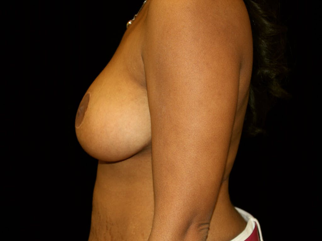 Breast Reduction T Incision Gallery - Patient 39235636 - Image 8