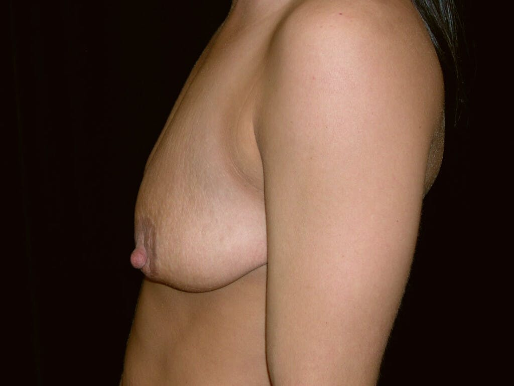 Peri-areolar Breast Lift Gallery - Patient 39235638 - Image 9
