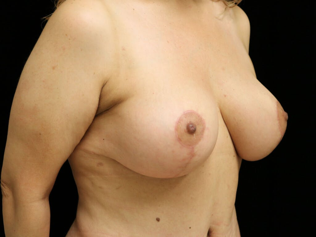 Vertical and Inverted T Breast Lift Gallery - Patient 39244064 - Image 4