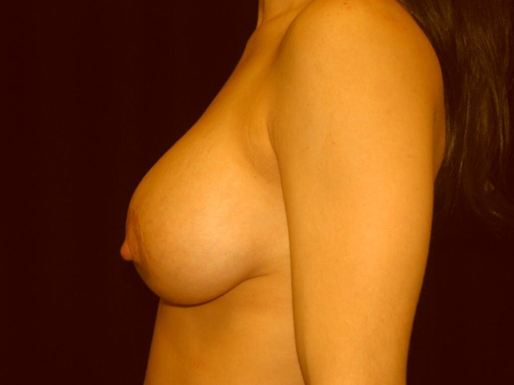 Peri-areolar Breast Lift Gallery - Patient 39235638 - Image 10