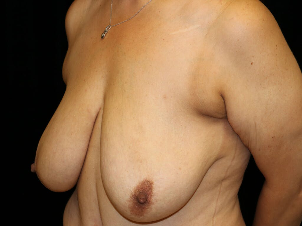 Vertical and Inverted T Breast Lift Gallery - Patient 39244064 - Image 5