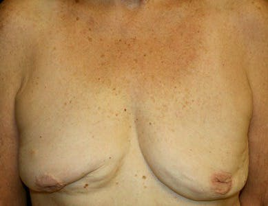 Revision Breast Surgery Gallery - Patient 39235639 - Image 1