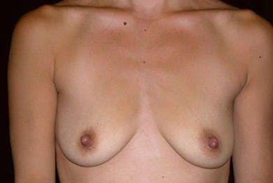 Breast Augmentation Gallery - Patient 39239540 - Image 1