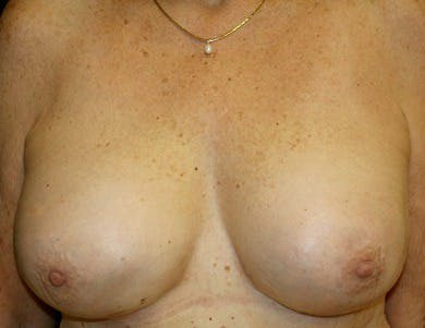 Revision Breast Surgery Gallery - Patient 39235639 - Image 2