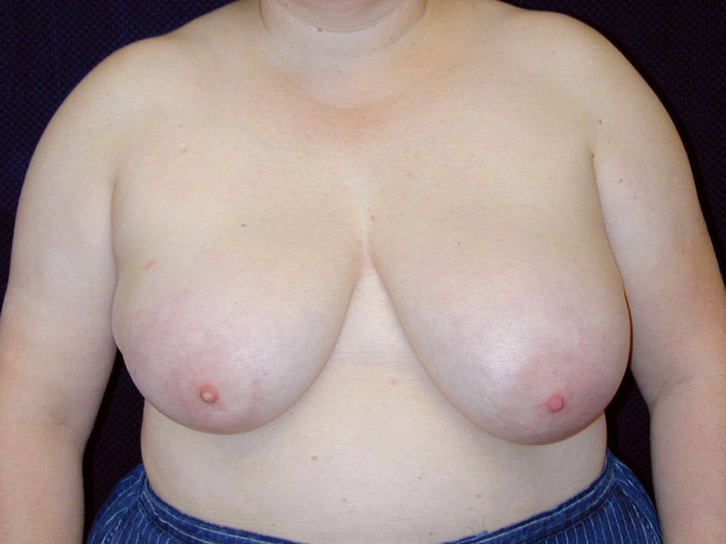 Breast Reduction T Incision Gallery - Patient 39244068 - Image 1