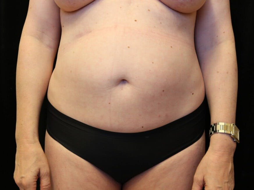 Tummy Tuck Gallery - Patient 39244073 - Image 1