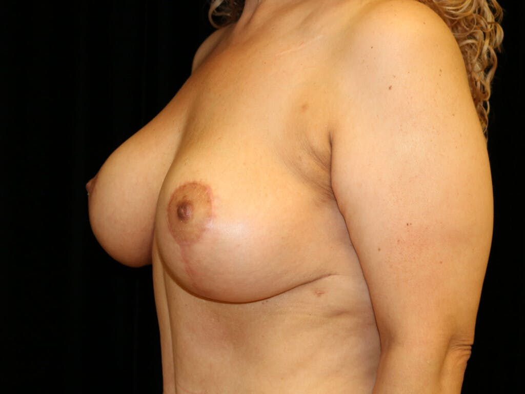 Vertical and Inverted T Breast Lift Gallery - Patient 39244064 - Image 6