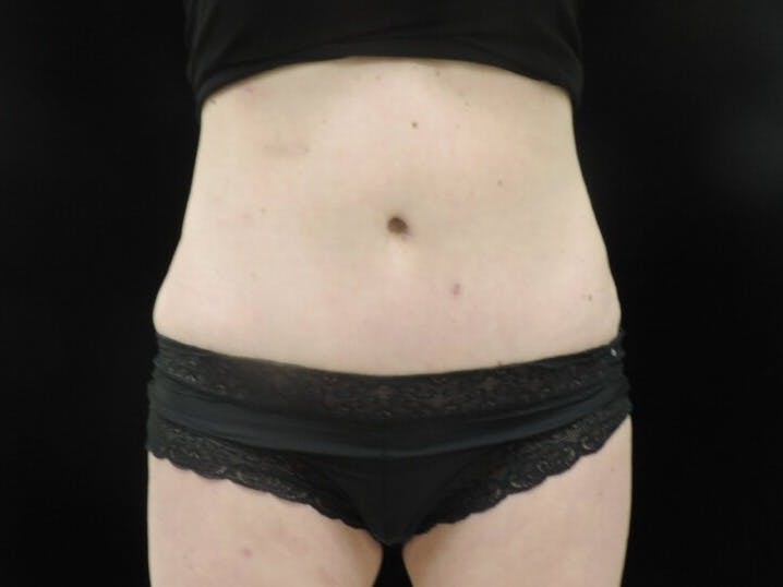 Tummy Tuck Gallery - Patient 39244073 - Image 2