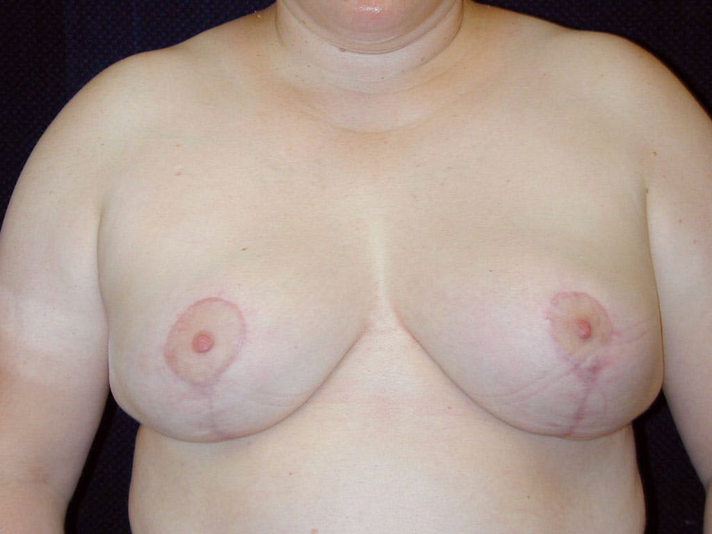 Breast Reduction T Incision Gallery - Patient 39244068 - Image 2