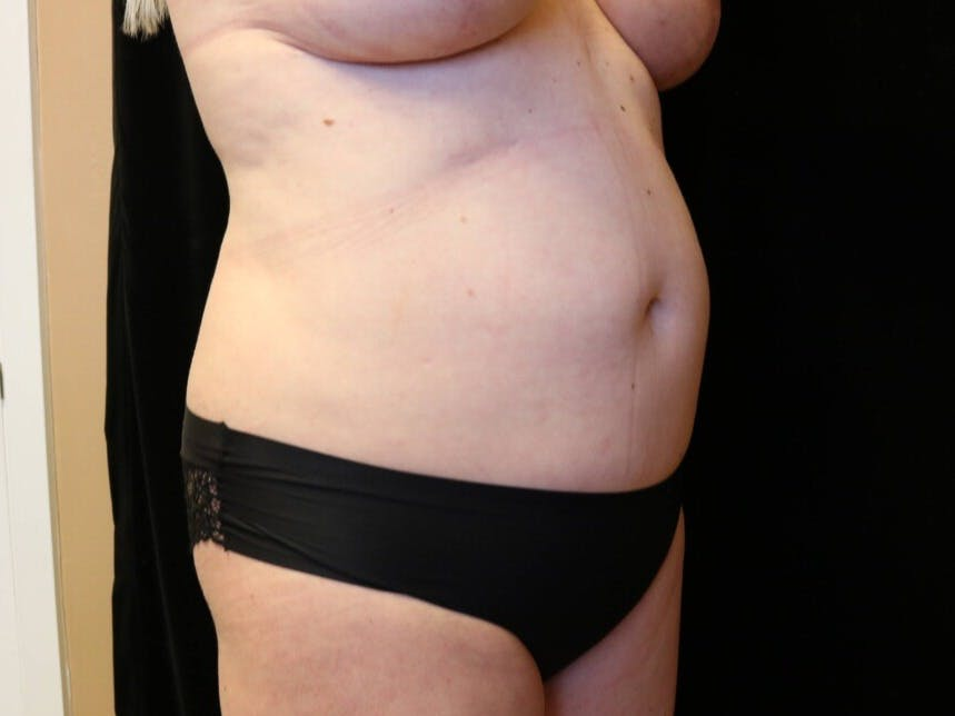 Tummy Tuck Gallery - Patient 39244073 - Image 3