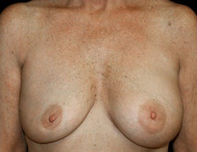 Revision Breast Surgery Gallery - Patient 39244065 - Image 1