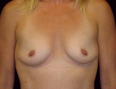 Breast Augmentation Gallery - Patient 39244067 - Image 1
