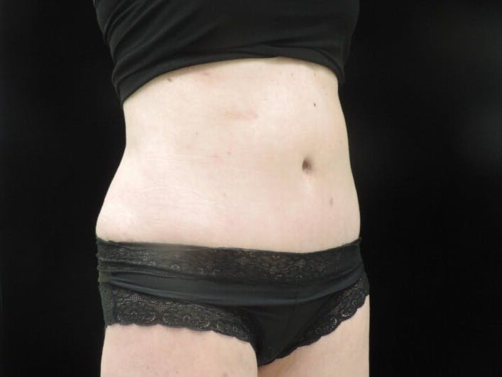 Tummy Tuck Gallery - Patient 39244073 - Image 4