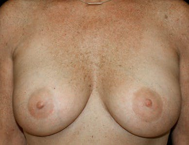 Revision Breast Surgery Gallery - Patient 39244065 - Image 2