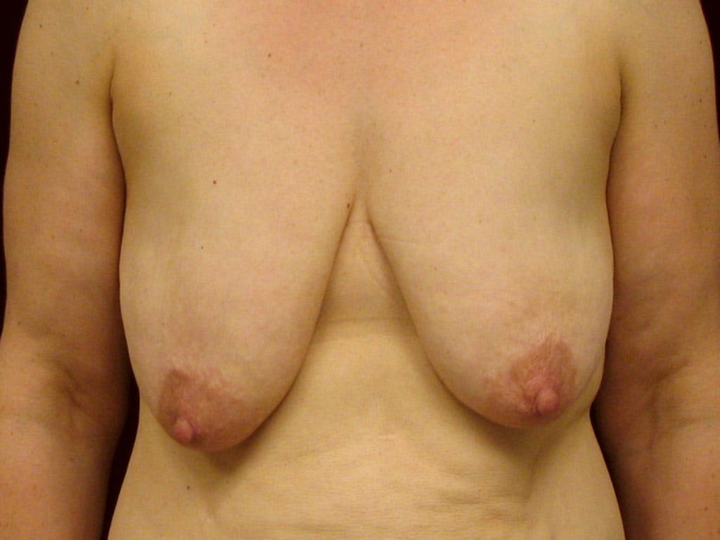 Vertical and Inverted T Breast Lift Gallery - Patient 39244078 - Image 1