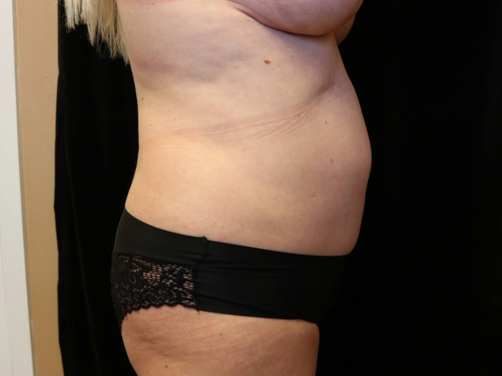 Tummy Tuck Gallery - Patient 39244073 - Image 5