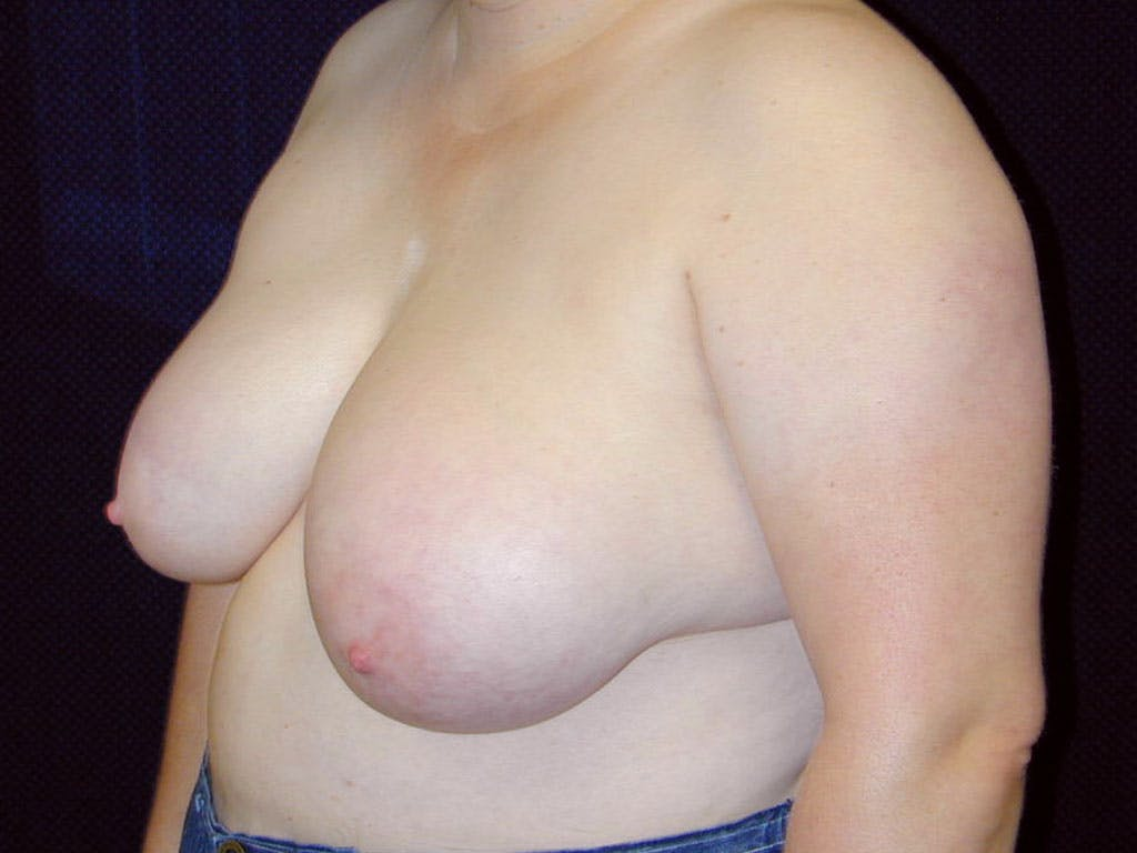 Breast Reduction T Incision Gallery - Patient 39244068 - Image 5