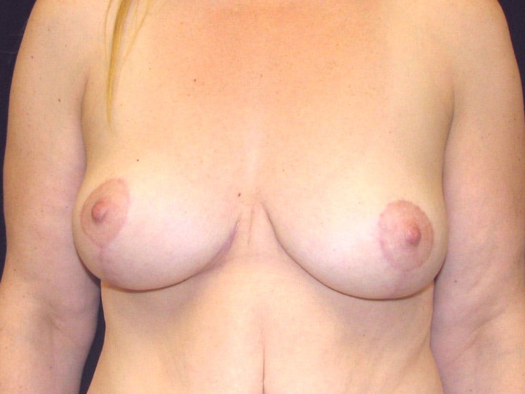 Vertical and Inverted T Breast Lift Gallery - Patient 39244078 - Image 2