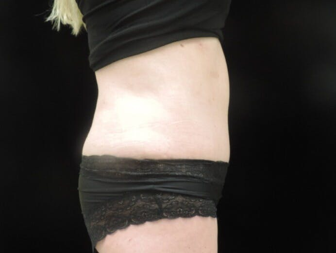 Tummy Tuck Gallery - Patient 39244073 - Image 6