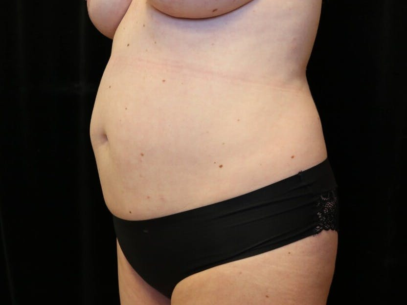 Tummy Tuck Gallery - Patient 39244073 - Image 7
