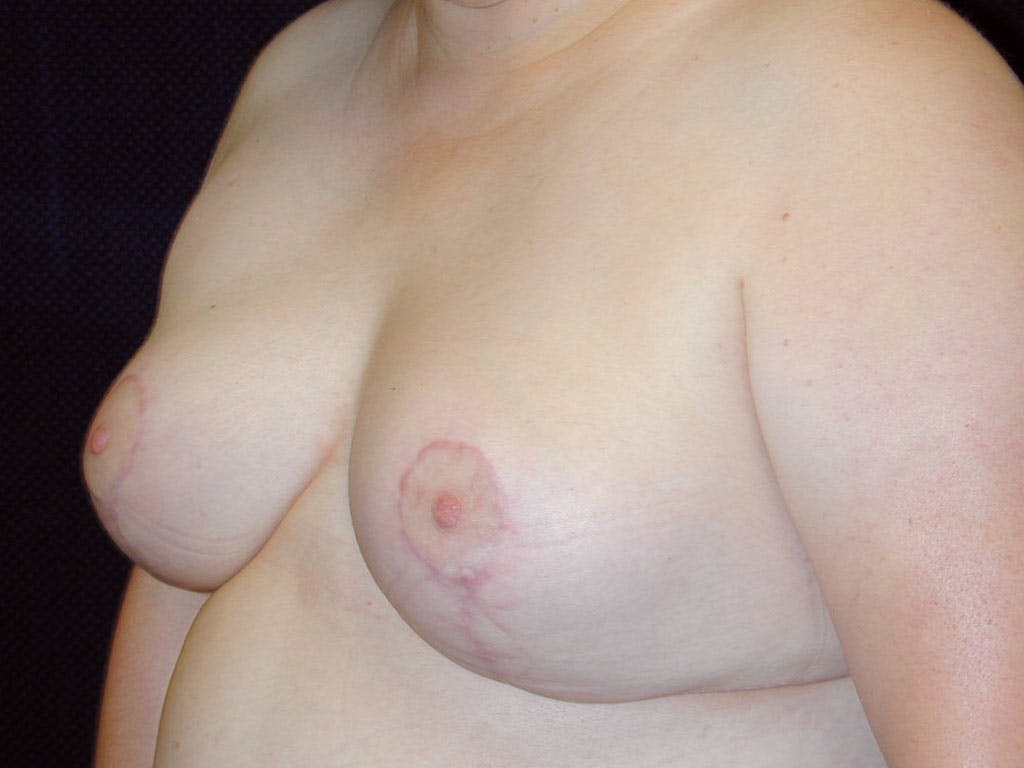 Breast Reduction T Incision Gallery - Patient 39244068 - Image 6