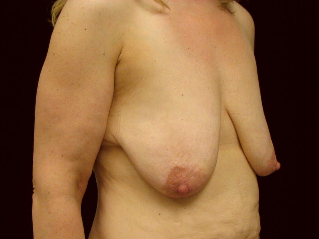 Vertical and Inverted T Breast Lift Gallery - Patient 39244078 - Image 3