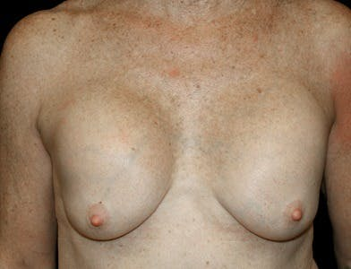 Revision Breast Surgery Gallery - Patient 39244069 - Image 1