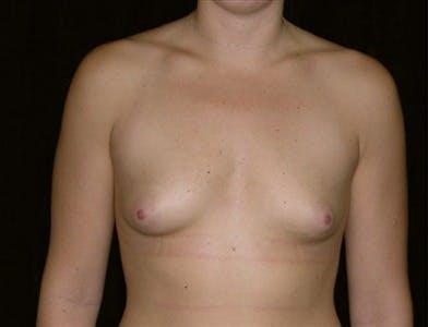 Breast Augmentation Gallery - Patient 39244070 - Image 1