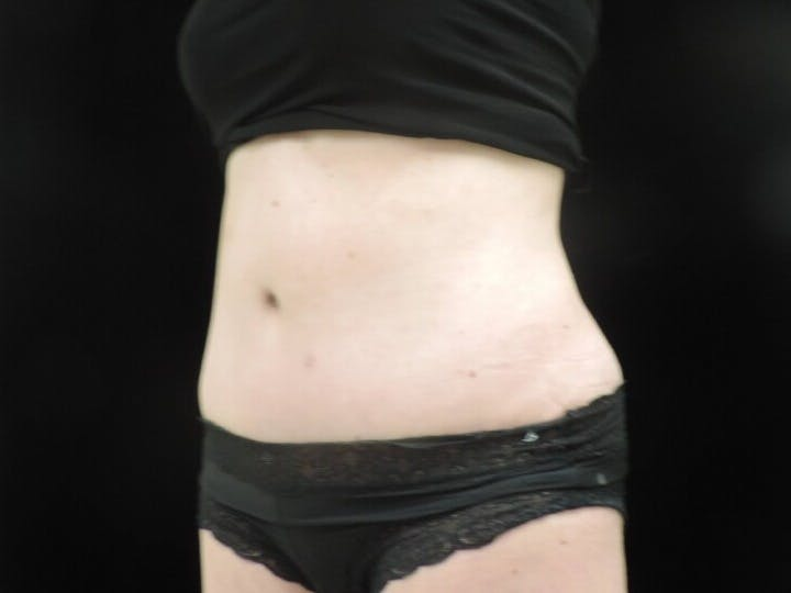 Tummy Tuck Gallery - Patient 39244073 - Image 8