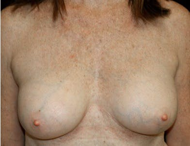 Revision Breast Surgery Gallery - Patient 39244069 - Image 2