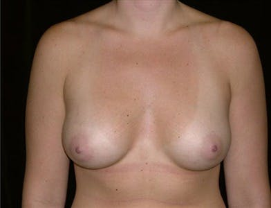 Breast Augmentation Gallery - Patient 39244070 - Image 2