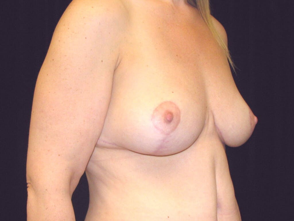 Vertical and Inverted T Breast Lift Gallery - Patient 39244078 - Image 4