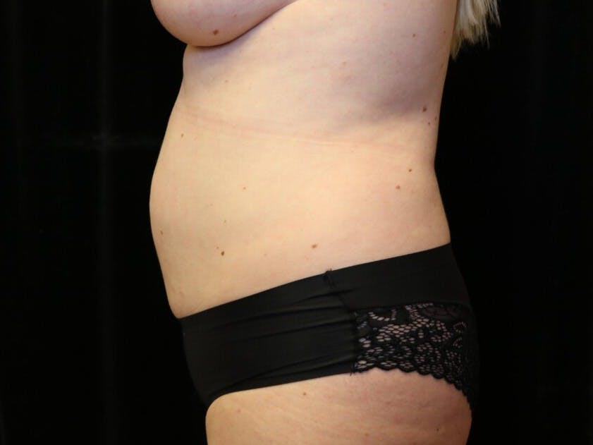 Tummy Tuck Gallery - Patient 39244073 - Image 9