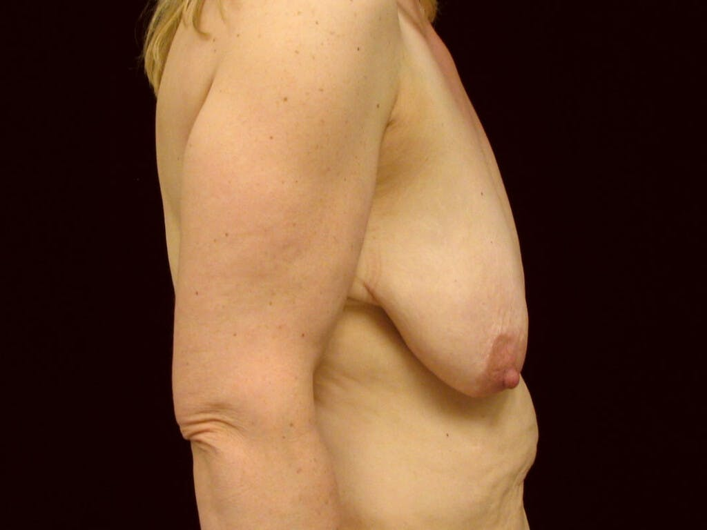 Vertical and Inverted T Breast Lift Gallery - Patient 39244078 - Image 5
