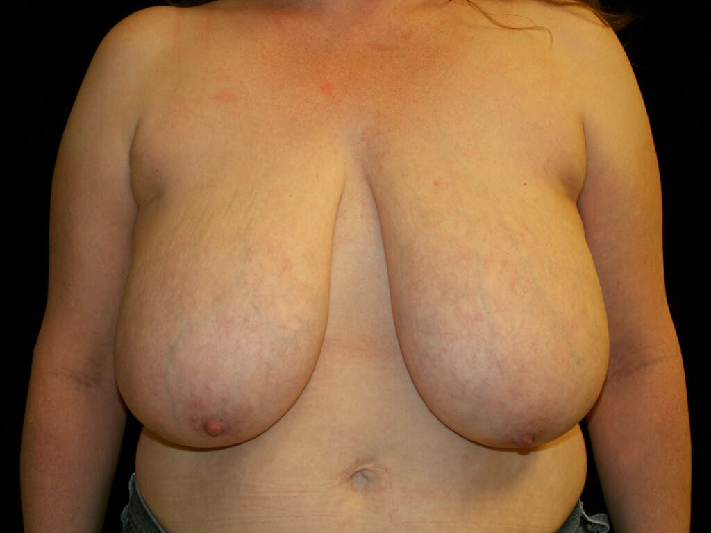 Breast Reduction T Incision Gallery - Patient 39244081 - Image 1