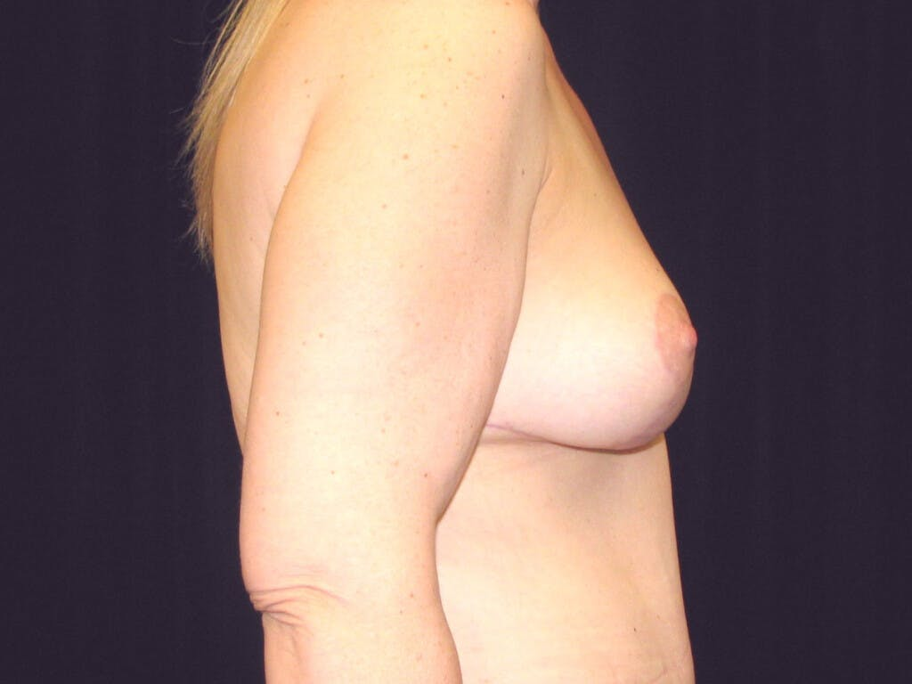 Vertical and Inverted T Breast Lift Gallery - Patient 39244078 - Image 6