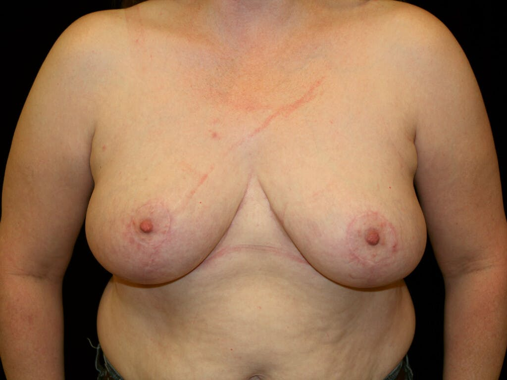 Breast Reduction T Incision Gallery - Patient 39244081 - Image 2