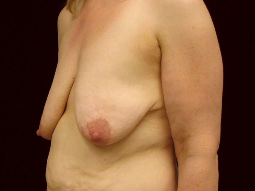 Vertical and Inverted T Breast Lift Gallery - Patient 39244078 - Image 7