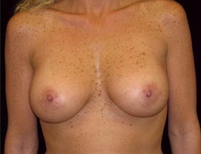 Breast Augmentation Gallery - Patient 39244072 - Image 2