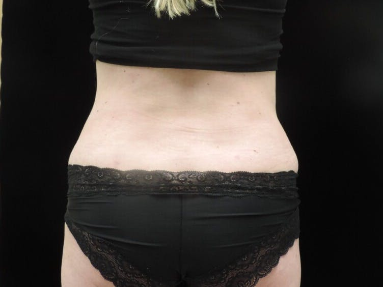 Tummy Tuck Gallery - Patient 39244073 - Image 12