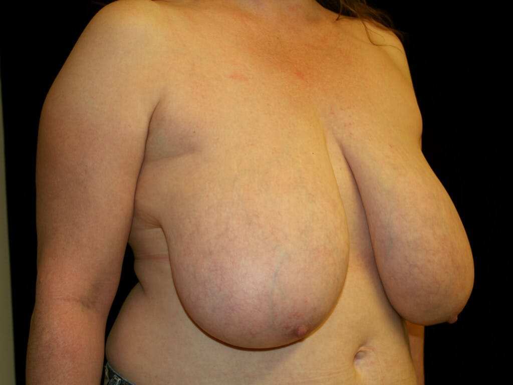 Breast Reduction T Incision Gallery - Patient 39244081 - Image 3