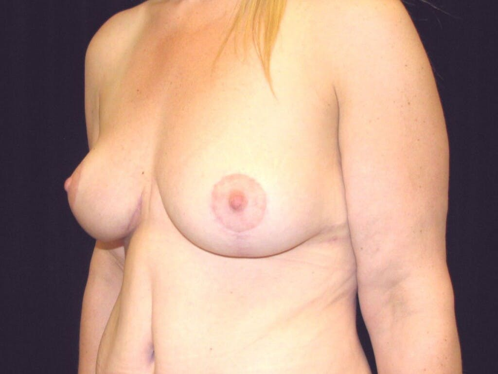 Vertical and Inverted T Breast Lift Gallery - Patient 39244078 - Image 8