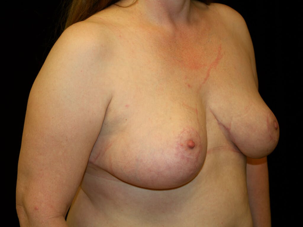 Breast Reduction T Incision Gallery - Patient 39244081 - Image 4
