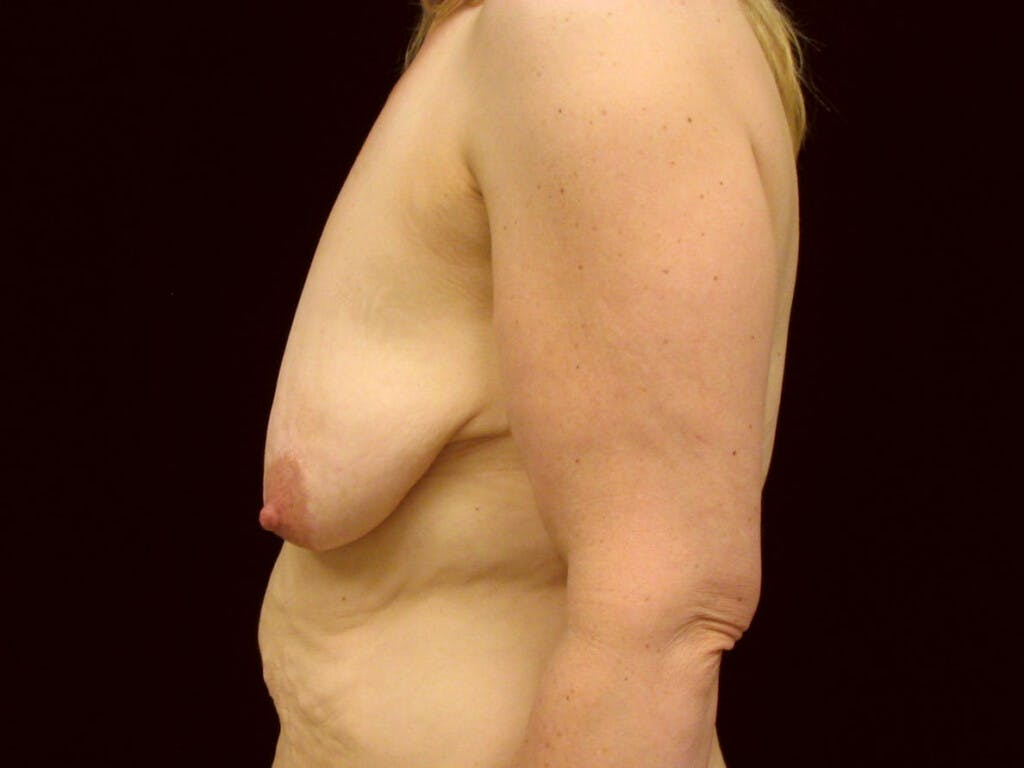 Vertical and Inverted T Breast Lift Gallery - Patient 39244078 - Image 9